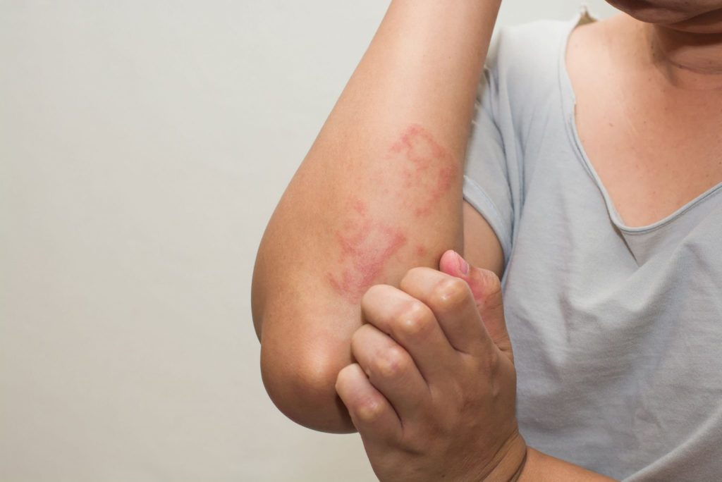 The main benefit of cryotherapy for eczema is calming skin irritation